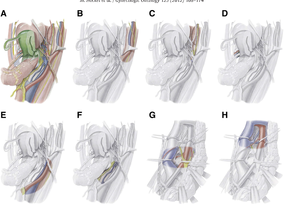 Pattern analysis of regional spread and therapeutic lymph node ...