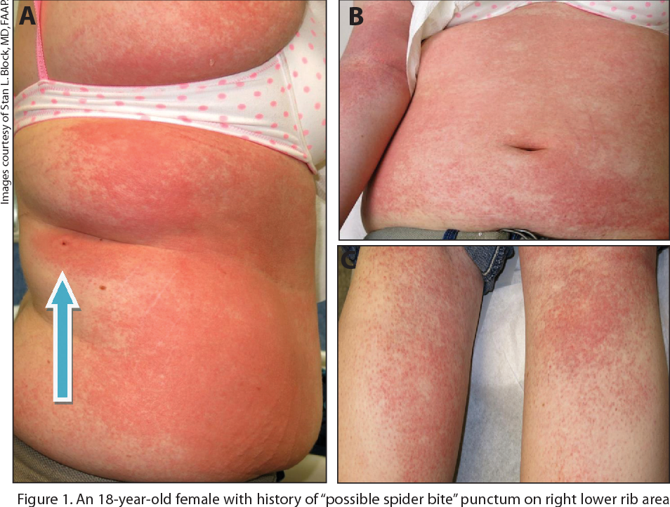 Figure 5 from Petechiae and purpura: the ominous and the not-so