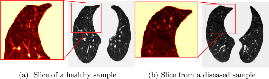Figure 3 for COPD Classification in CT Images Using a 3D Convolutional Neural Network