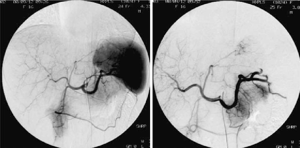 Groß Weibliche Genitalanatomie Fotos Bilder - Anatomie Ideen ...