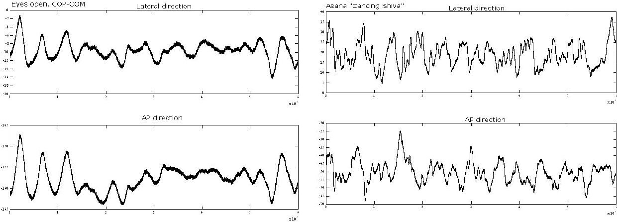 Figure 3 from Power spectral density in balance assessment
