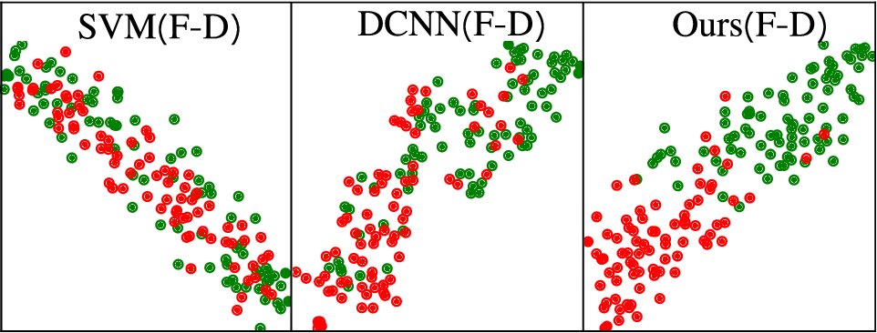 Figure 4 for Multimodal Representations Learning and Adversarial Hypergraph Fusion for Early Alzheimer's Disease Prediction