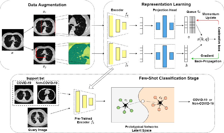 Figure 1 for Momentum Contrastive Learning for Few-Shot COVID-19 Diagnosis from Chest CT Images