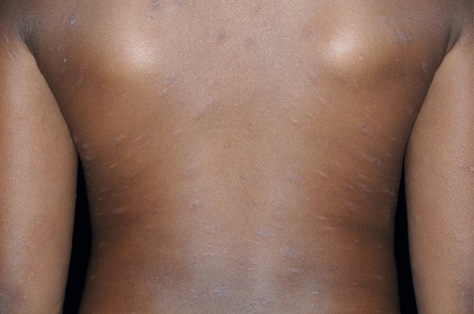 Figure 2 From Skin Diseases Following A Christmas Tree Pattern