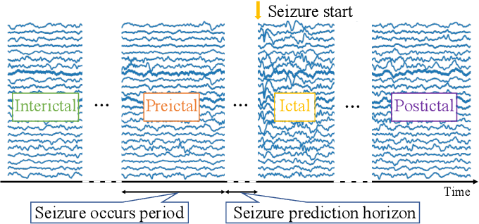 Figure 1 for A Novel Multi-scale Dilated 3D CNN for Epileptic Seizure Prediction