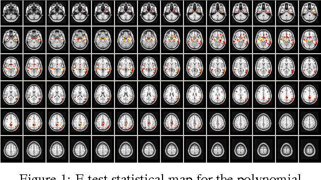 Figure 1 for Voxelwise nonlinear regression toolbox for neuroimage analysis: Application to aging and neurodegenerative disease modeling