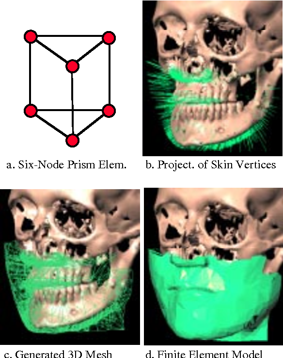 Anatomy-based facial tissue modeling using the finite element method