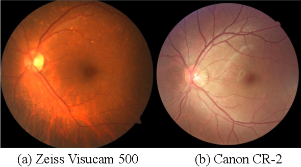 Figure 1 for CADA: Multi-scale Collaborative Adversarial Domain Adaptation for Unsupervised Optic Disc and Cup Segmentation