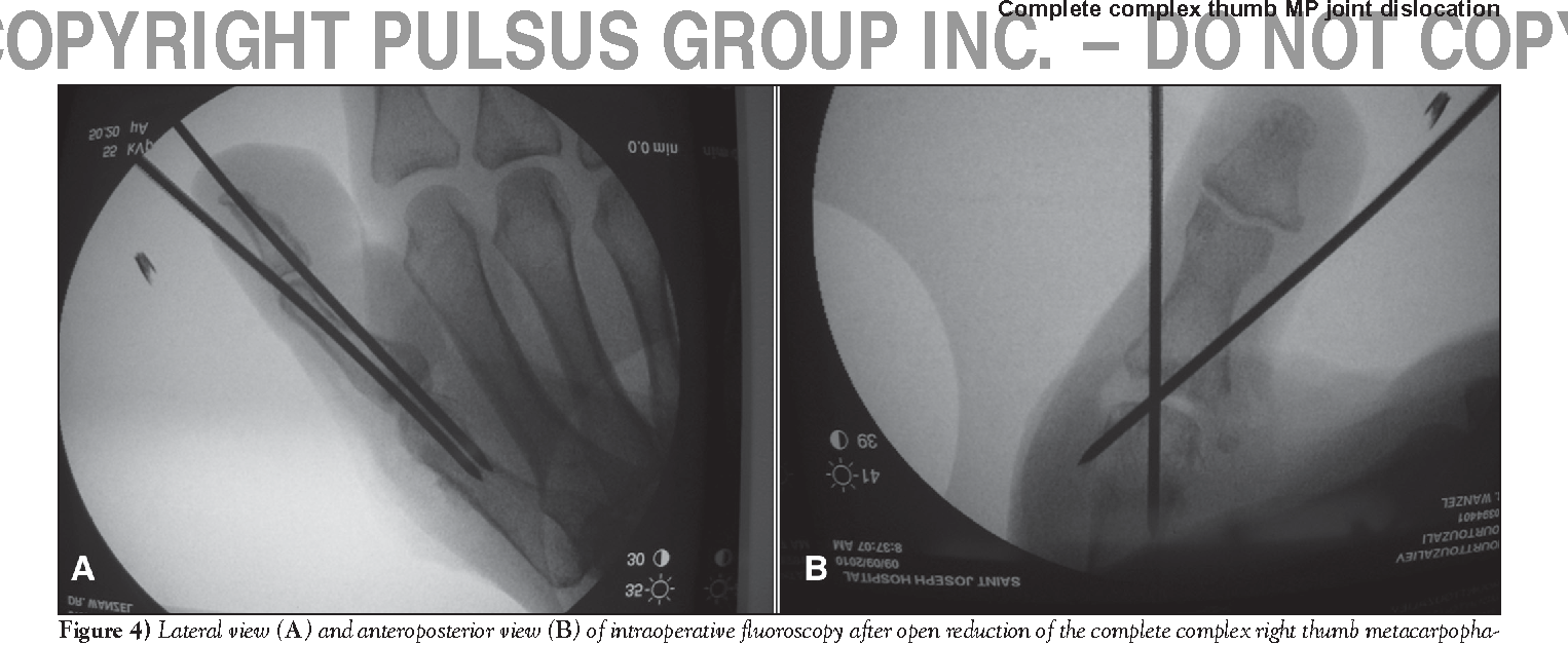 Figure 4 from Late presentation of a complete complex thumb ...