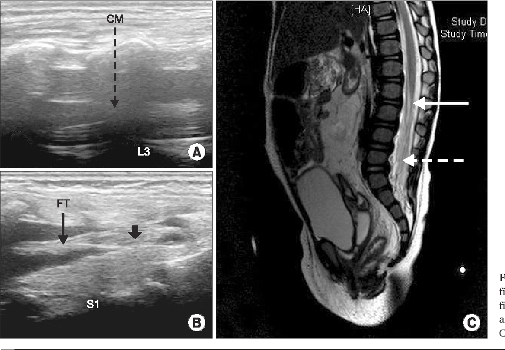 Fig. 1. Ultrasound (A, B) and MRI (C) findings. CM: conus medullaris, FT: filum terminale. In (C), the solid arrow and dotted arrow indicate the low-lying CM and thickened FT.