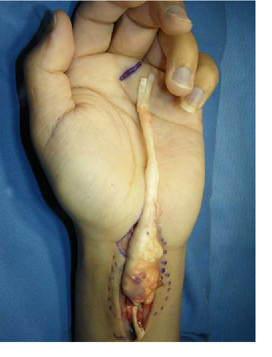 Figure 3 Resection of the flexor superficialis tendon of the middle finger.
