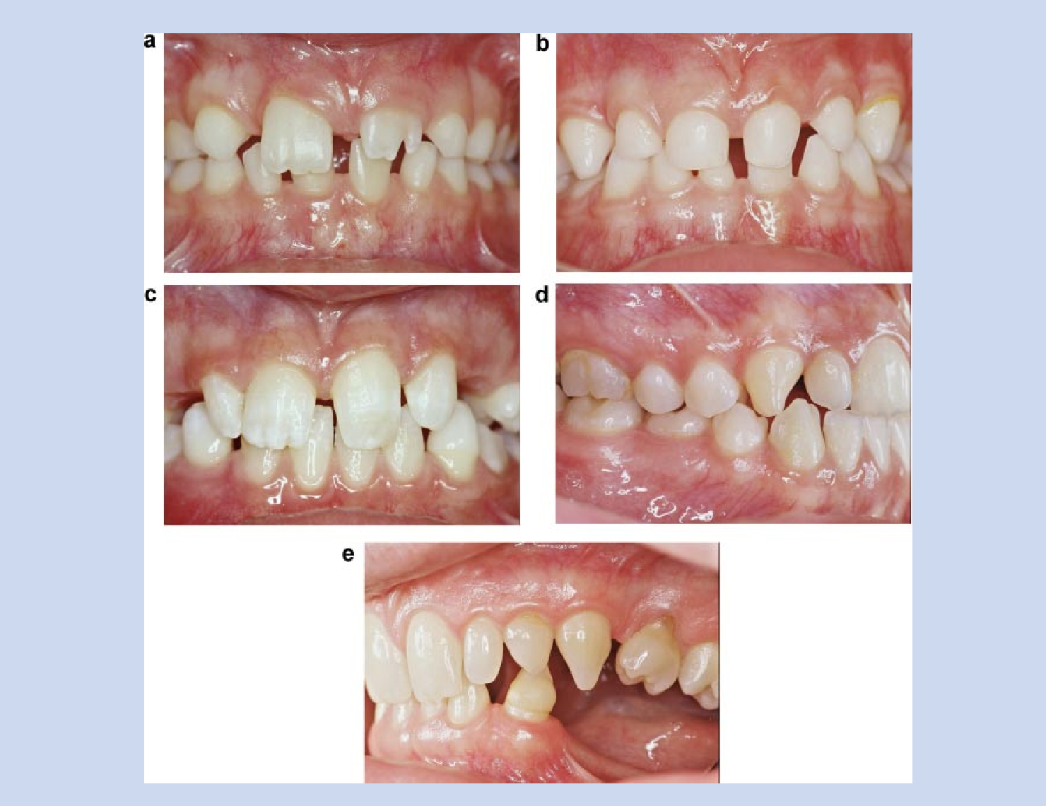 Figure 4 from Orodental manifestations in ectodermal