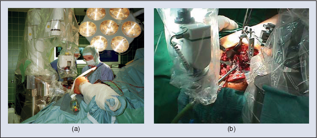 Figure 2 from Surgical and Interventional Robotics - Core