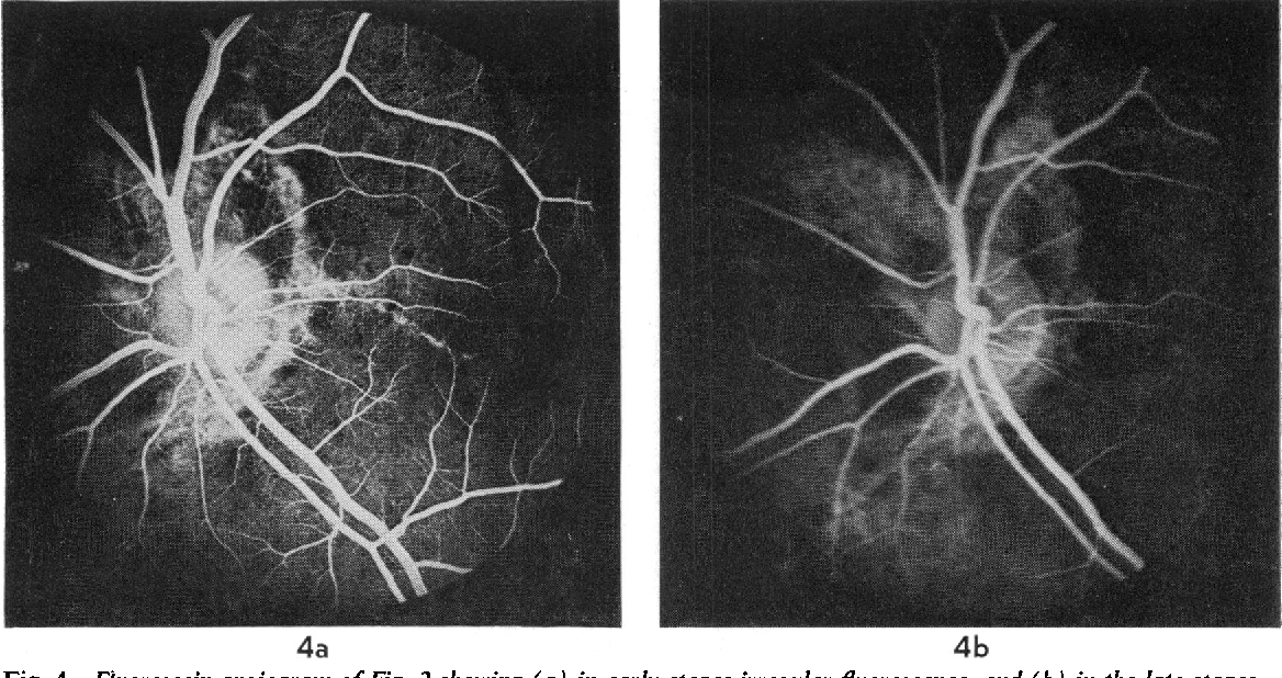 4 Fluorescein Angiogram Of Fig 2 Showing A In Early Stages