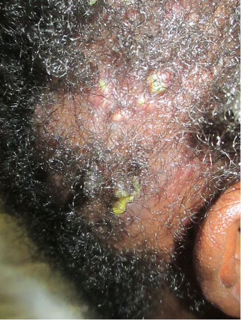 Kerion figure 1 from the kerion: an angry tinea capitis. - semantic scholar