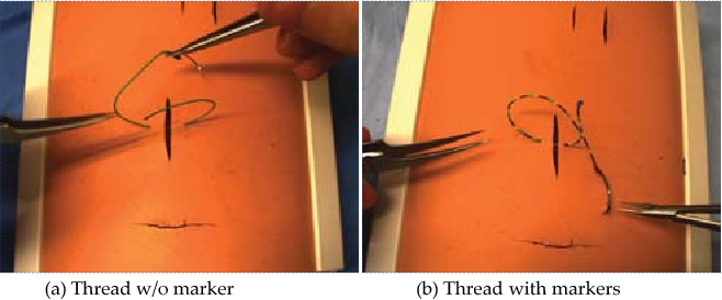 Figure 1 for Multi-stage Suture Detection for Robot Assisted Anastomosis based on Deep Learning