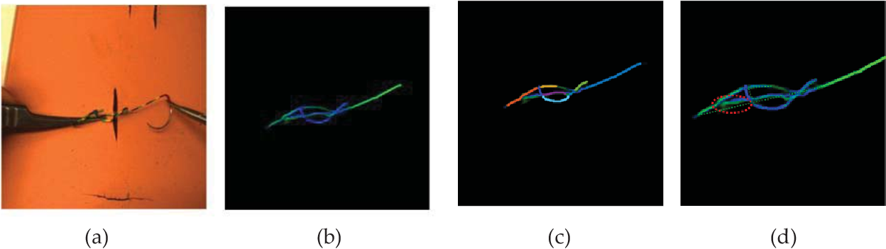 Figure 2 for Multi-stage Suture Detection for Robot Assisted Anastomosis based on Deep Learning