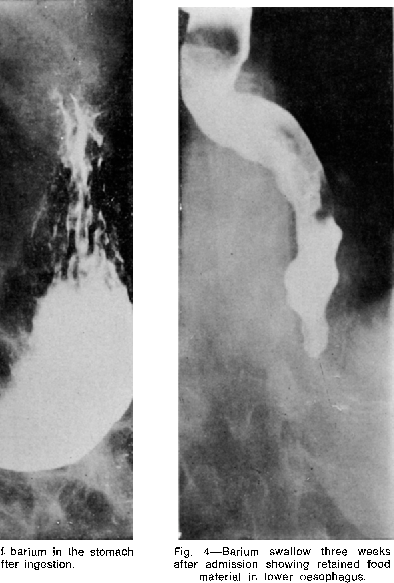 Fig. 4--Bar ium swallow three weeks after admission showing retained food material in lower oesophagus.