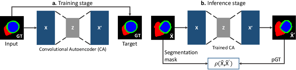 Figure 1 for Efficient Model Monitoring for Quality Control in Cardiac Image Segmentation