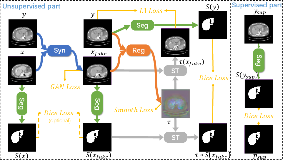 Figure 3 for JSSR: A Joint Synthesis, Segmentation, and Registration System for 3D Multi-Modal Image Alignment of Large-scale Pathological CT Scans