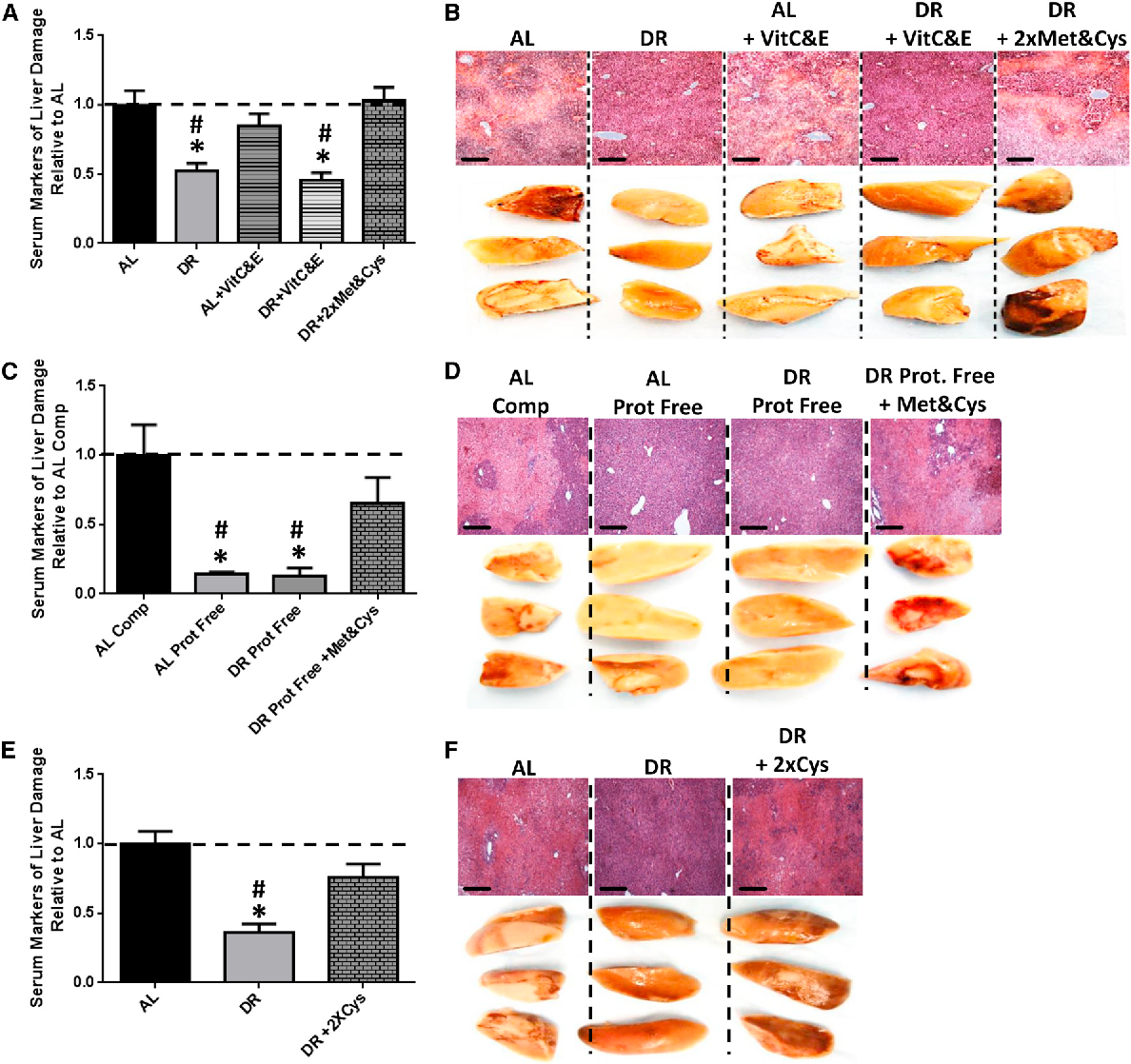 Figure 2. Sulfur Amino Acids Control the Benefits of DR and PR (A and B) Serum markers of liver damage (A) and liver pathology after reperfusion (B) in mice (n = 5/group) preconditioned on complete diets fed AL or 50% DR ± supplementation with vitamins C&E or Met&Cys as indicated. Asterisk indicates the significance of the difference versus AL and pound sign versus DR + 23 Met&Cys; */#p < 0.05. (C and D) Serum markers of liver damage (C) and liver pathology after reperfusion (D) in mice (n = 5/group) preconditioned on complete (Comp) or protein-free (Prot. Free) diets fed AL or 35% DR with Met&Cys addition as indicated prior to hepatic IRI. Asterisk indicates the significance of the difference versus AL complete and pound sign versus DR Prot. Free + Met&Cys; */# p < 0.05. (E and F) Serummarkers of liver damage (E) and liver pathology after reperfusion (F) in mice (n = 5/group) preconditioned on complete diets fed AL or 50%DRwith 23Cys added as indicated. Asterisk indicates the significance of the difference versus AL and pound sign versus DR + 23Cys; */#p < 0.05. All error bars SEM. See also Figure S2.