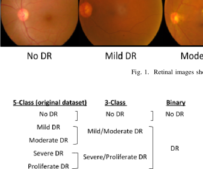 Figure 2 for Conversion and Implementation of State-of-the-Art Deep Learning Algorithms for the Classification of Diabetic Retinopathy
