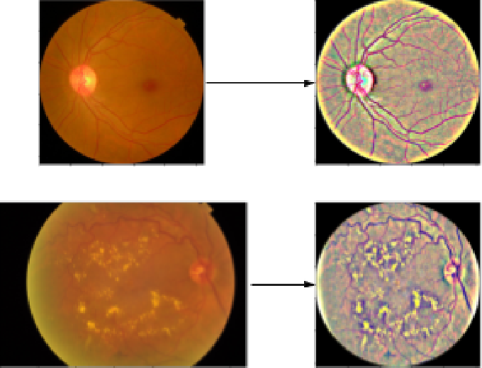 Figure 3 for Conversion and Implementation of State-of-the-Art Deep Learning Algorithms for the Classification of Diabetic Retinopathy