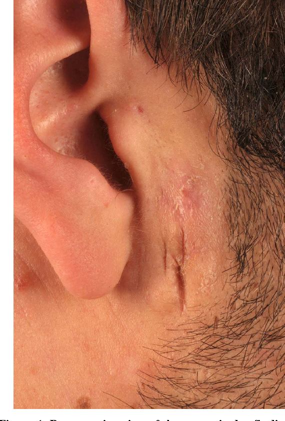 The Preauricular Sinus : A Novel Approach for Complete Bilateral ...