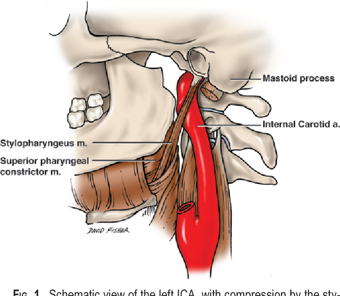 Compression Of The Cervical Internal Carotid Artery By The