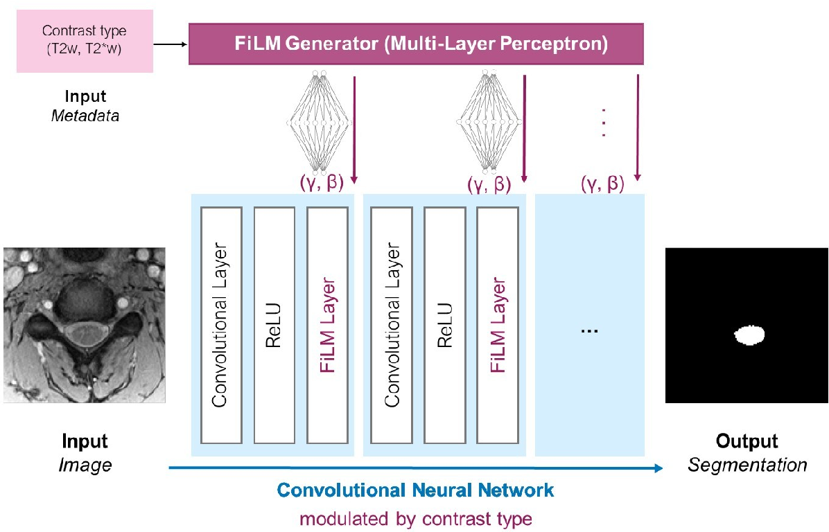Figure 1 for Automatic segmentation of spinal multiple sclerosis lesions: How to generalize across MRI contrasts?