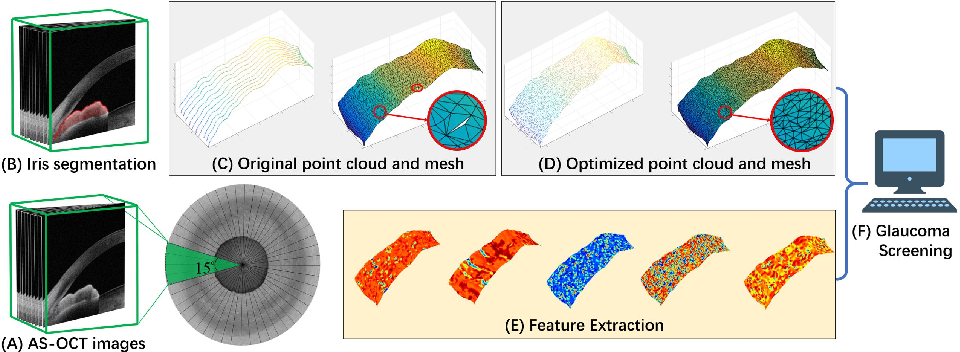 Figure 3 for Reconstruction and Quantification of 3D Iris Surface for Angle-Closure Glaucoma Detection in Anterior Segment OCT