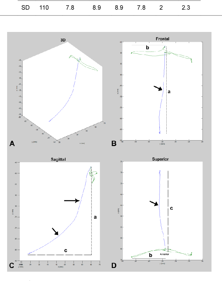 Figure 2 from An innovative method to analyse the range of border