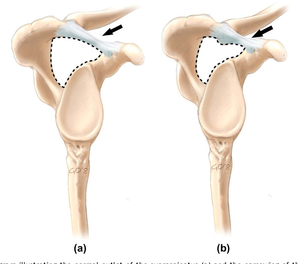 Figure 1 from MRI of impingement syndromes of the shoulder ...