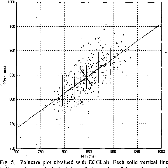 Figure 5 from Development of a Matlab software for analysis of heart