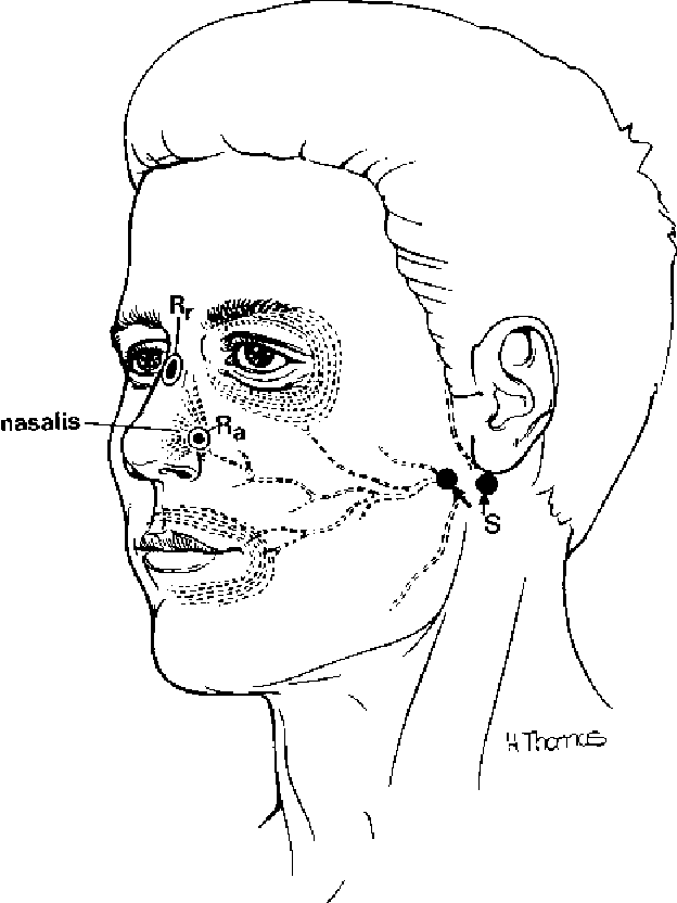 Figure 6 6 From Special Nerve Conduction Techniques