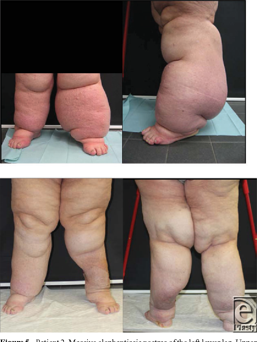 Figure 5 from Debulking Surgery for Elephantiasis Nostras With Large