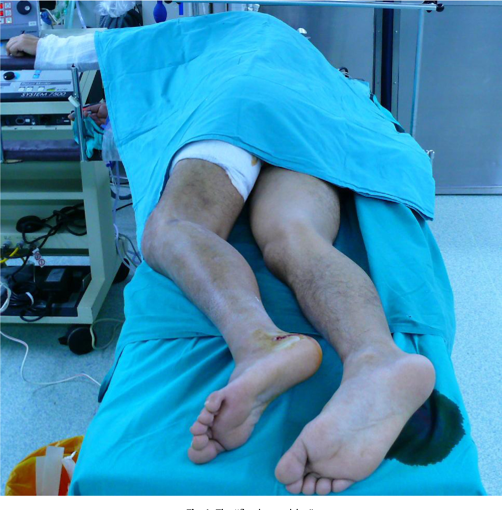 A posterior reversed L-shaped approach for the tibial plateau ...