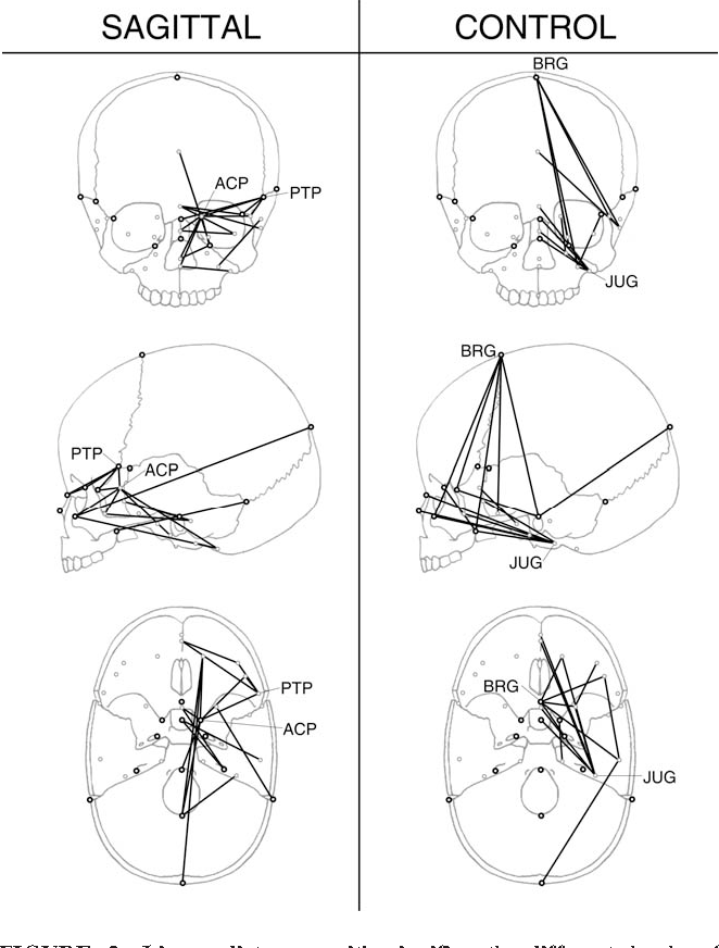 Fluctuating Asymmetry And Developmental Instability In Sagittal
