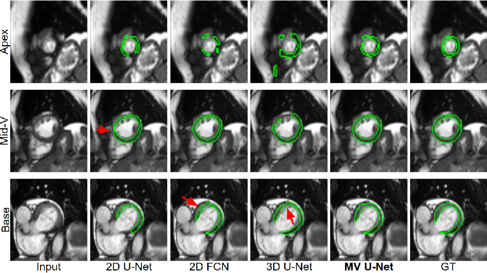 Figure 4 for Learning Shape Priors for Robust Cardiac MR Segmentation from Multi-view Images