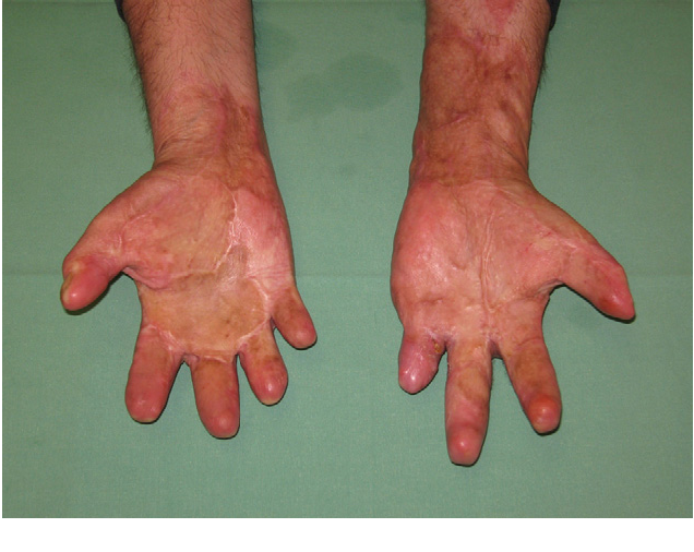 Figure 2 from Burn injuries due to Christian religious customs