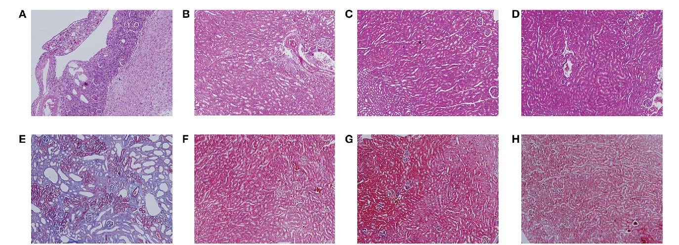 Kidney Tissue Targeted Metabolic Profiling Of Unilateral Ureteral