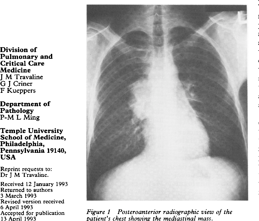 Figure I from Anterior mediastinal mass in a young man. - Semantic ...
