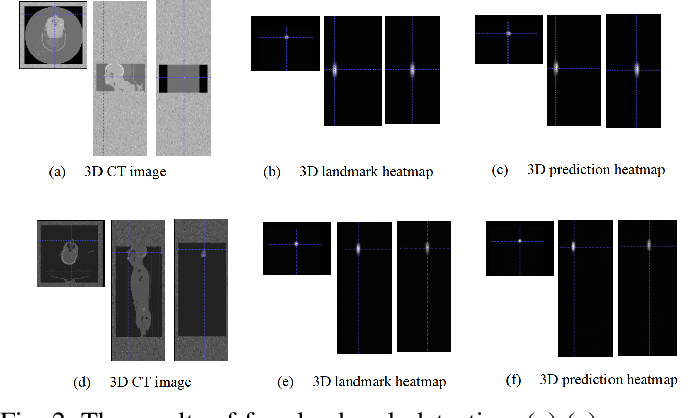 Figure 2 for Human Recognition Using Face in Computed Tomography