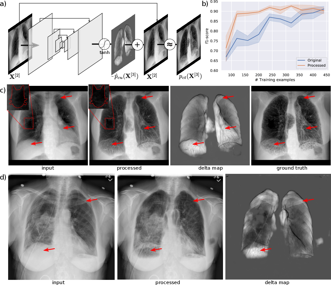 Figure 1 for Separation of target anatomical structure and occlusions in chest radiographs