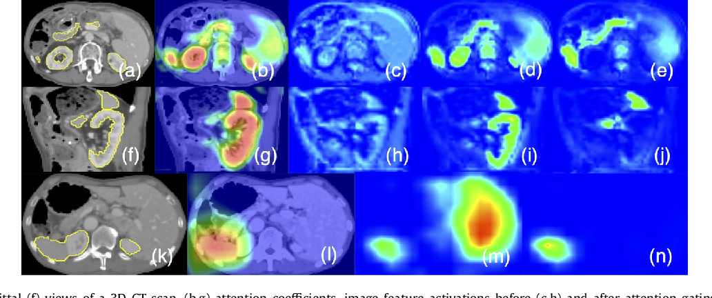 Figure 1 for Attention Gated Networks: Learning to Leverage Salient Regions in Medical Images
