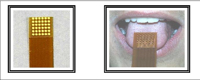 Figure 2 for Utilisation de la substitution sensorielle par électro-stimulation linguale pour la prévention des escarres chez les paraplégiques. Etude préliminaire