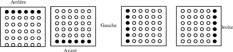 Figure 3 for Utilisation de la substitution sensorielle par électro-stimulation linguale pour la prévention des escarres chez les paraplégiques. Etude préliminaire