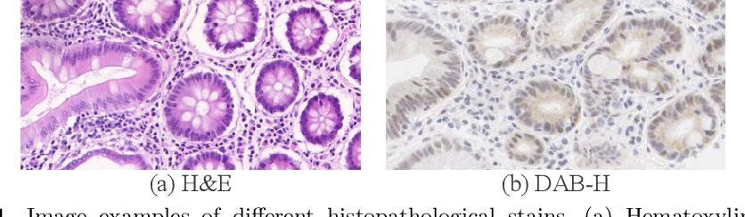 Figure 1 for Dual Adaptive Pyramid Network for Cross-Stain Histopathology Image Segmentation