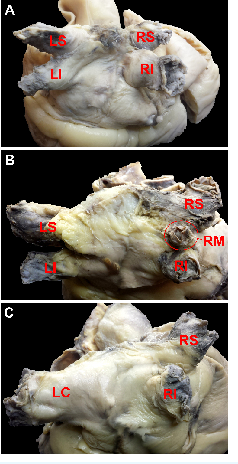 Figure 1 From Normal Distal Pulmonary Vein Anatomy Semantic Scholar