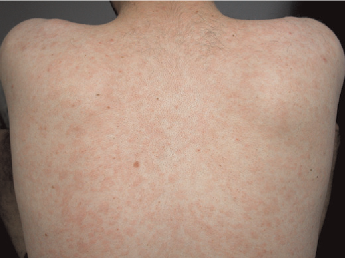 Figure 3 from Secondary syphilis: the classical triad of skin rash
